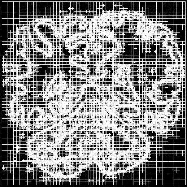 Výpočtová sieť pre analýzu obrazu ludského mozgu.
