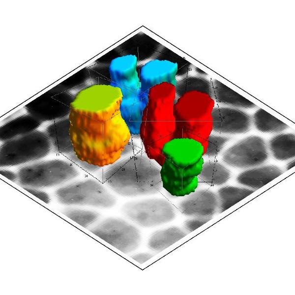 Traking buniek v časopriestorových obrazoch